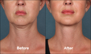 KybellaPatientPR3BeforeAfterFrontView-768x457