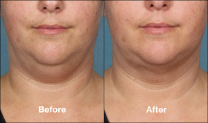 KybellaPatientPR5BeforeAfterFrontView-768x457